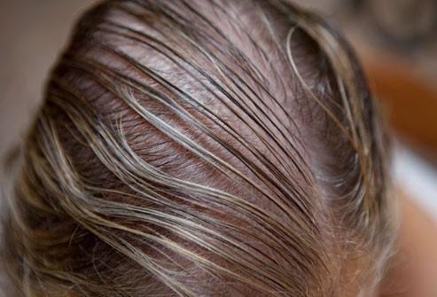 أسباب تساقط الشعر؟