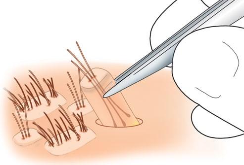 العلاج بزرع الشعر لدى النّساء