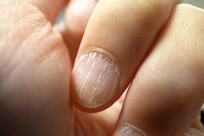 انخفاض مستويات الحديد وتأثيره على تساقط الشعر
