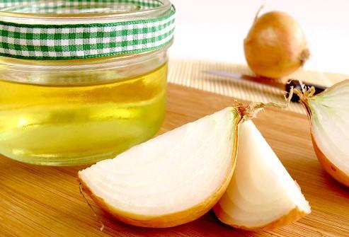 فوائد عصير البصل لعلاج تساقط الشعر