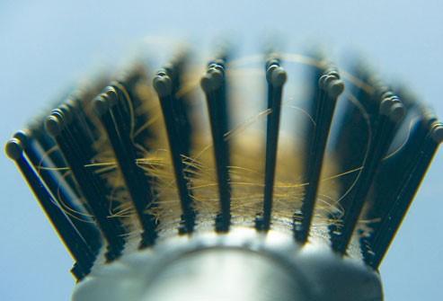كم يبلغ المعدل الطبيعي لفقدان الشعر؟