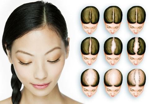 هل يمكن تحديد كميّة تساقط الشعر؟