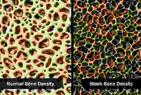 كثافة العظام